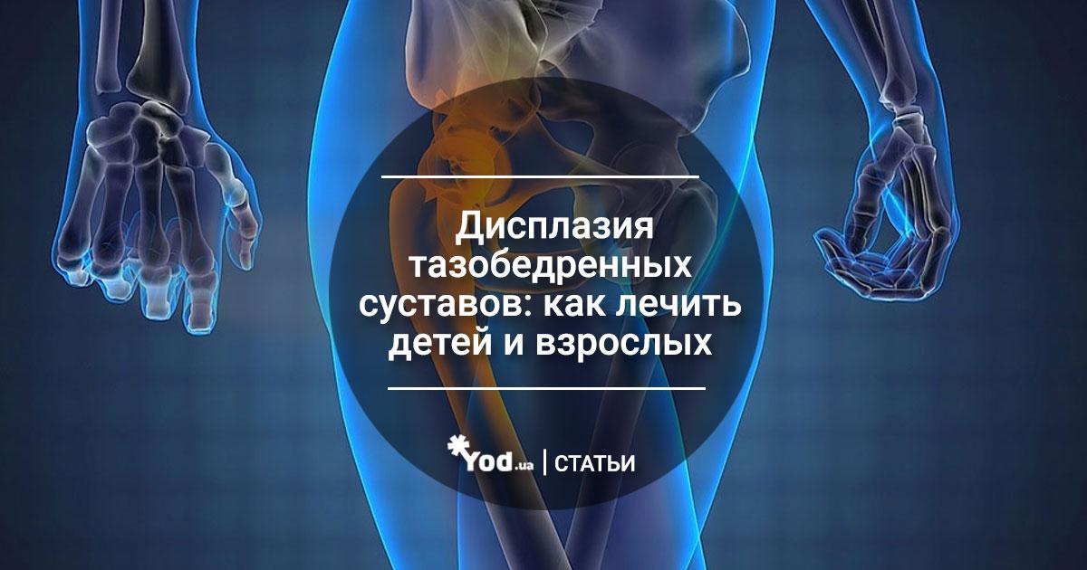 Дисплазия тазобедренных суставов врач киев как восстановить хрящевую ткань на суставе