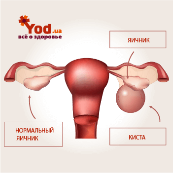 Кисты яичника: виды и лечение - YOD.ua