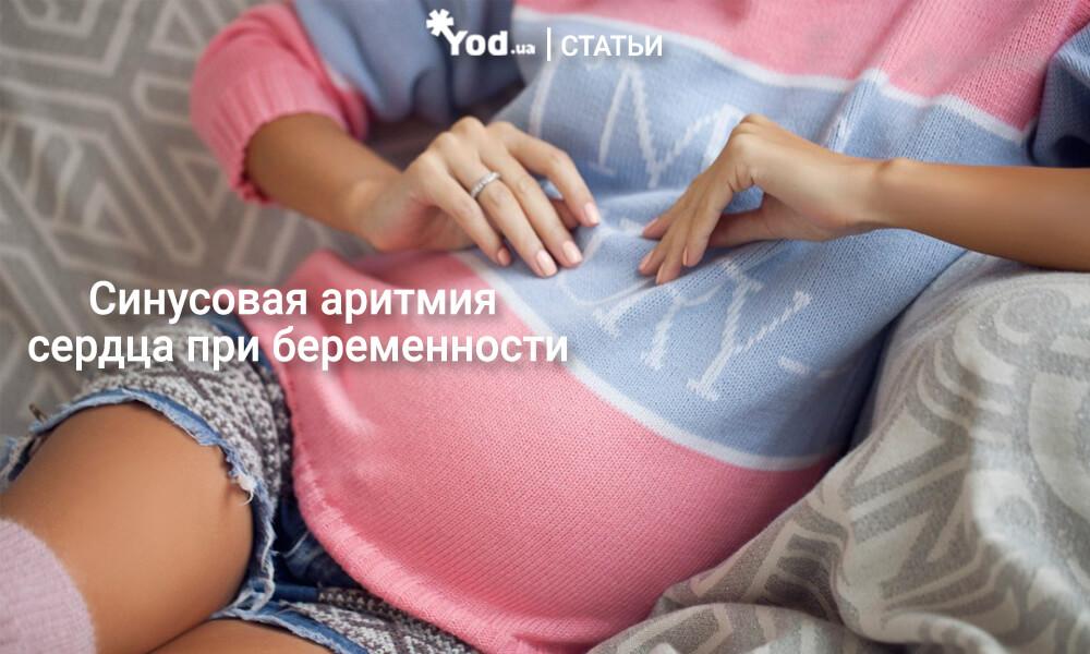 Синусовая аритмия при беременности