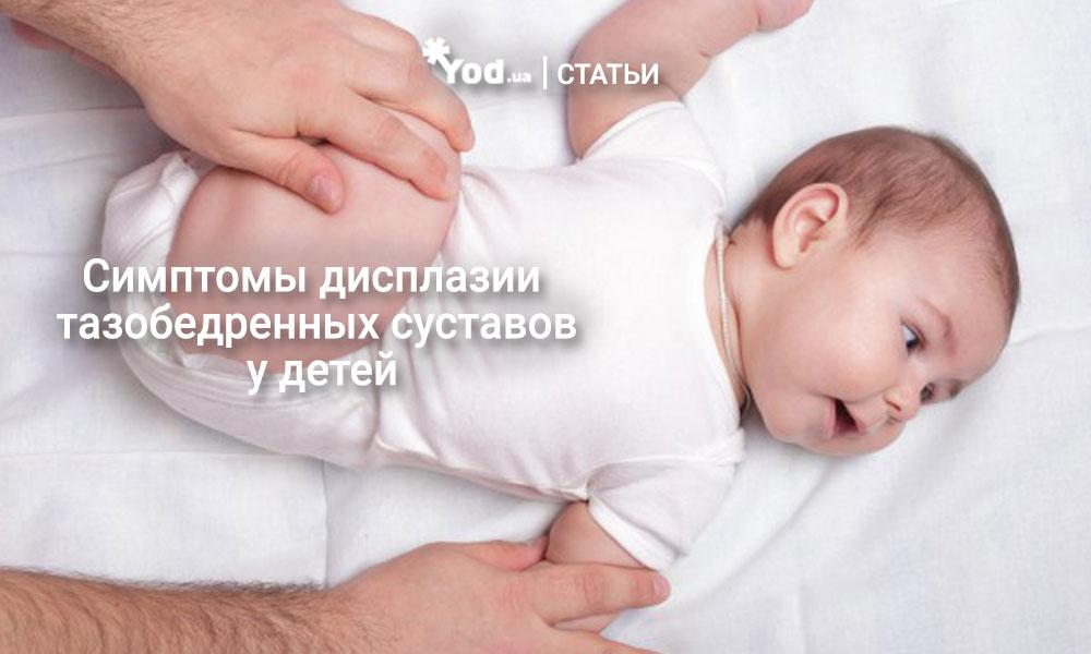 дисплазия у детей фото