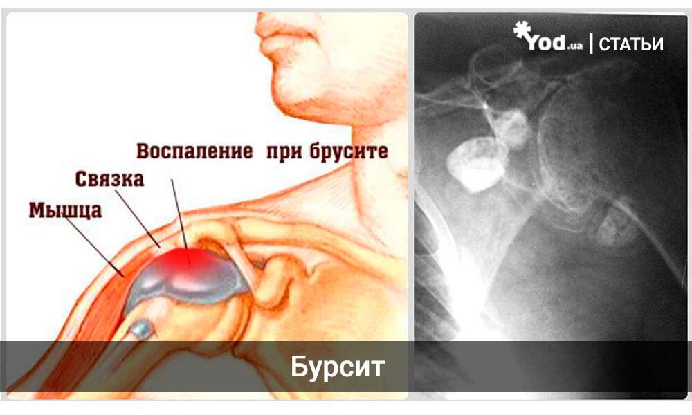 Субакромиально субдельтовидный бурсит правого плечевого сустава