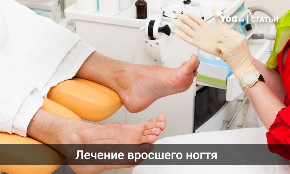 Лечение в домашних условиях врастания ногтя