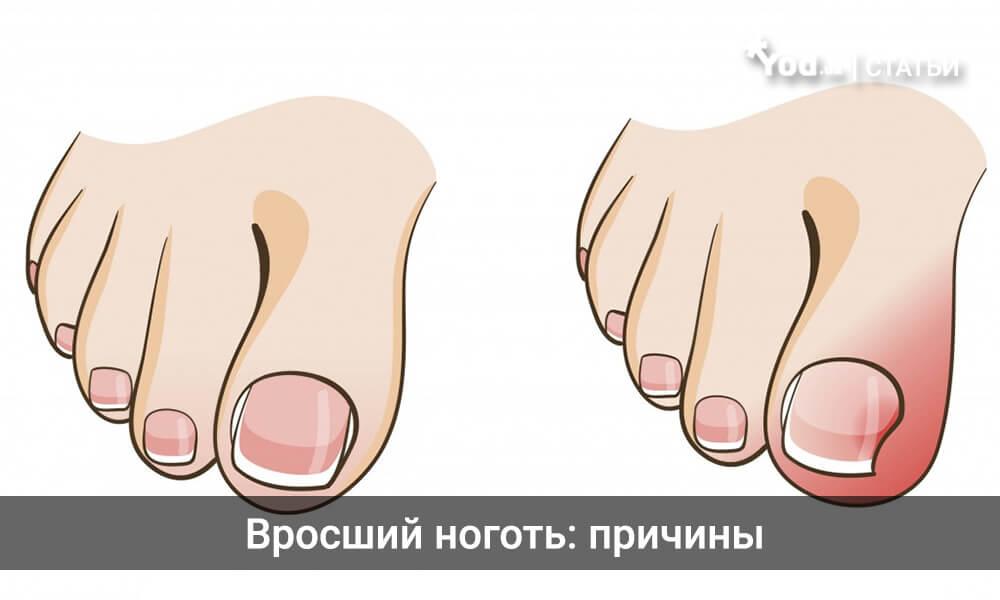 Как и чем лечить когда врастает ноготь на ноге